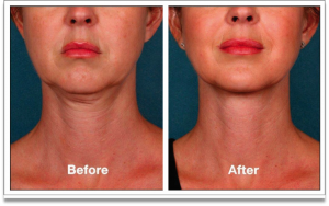 Before and After picture of woman who used Kybella®