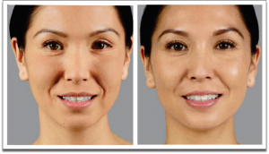 Before and After picture of woman who used Voluma®